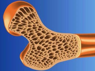 درمان عفونت و التهاب استخوان با نانوکامپوزیت چندکاره